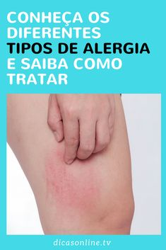 Tipos de alergia Face And Body, Healthy Life, Health Tips, Doterra, Detox, Beauty Hacks, Knowledge, Allergy Remedies, Baby Health