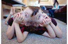 Conjoined twins Tatiana and Krista Hogan watch Miley Cyrus in their grandma& living room. Cellulite, Conjoined Twins, Human Oddities, Human Poses Reference, Couples Images, Medical Conditions, Human Rights, Human Body, Wonders Of The World