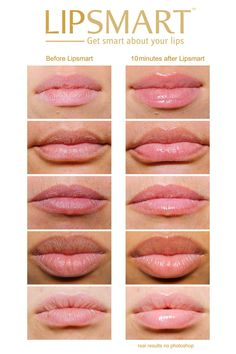 Before and After - LipSmart hydrating anti-aging lip volumizer