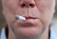 Smoker lips, with evidence of sagging and wrinkles.