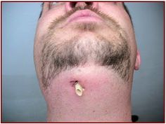 If a dental abscess is left untreated it can create a fistula for extraoral drainage. What is your treatment protocol for this in your office? http://www.dentaltown.com/MessageBoard/thread.aspx?s=2&f=134&t=234386&pg=1