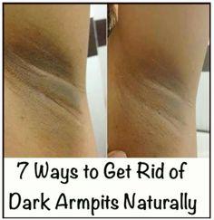 Get rid of drk armpits