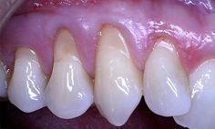 Si notas que tus encias se están retrayendo hacia arriba y tus dientes están quedando al descubierto deberías leer esta información. Vamos a explicarte a que se debe y cuales son las soluciones naturales que puedes aplicar para tratar este problema. Sigue leyendo!
