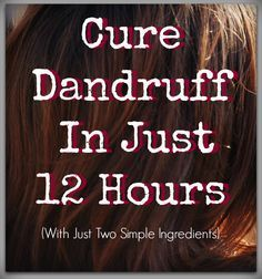 The ONLY way I've ever found to get rid of dandruff easily and naturally. And I've tried everything!
