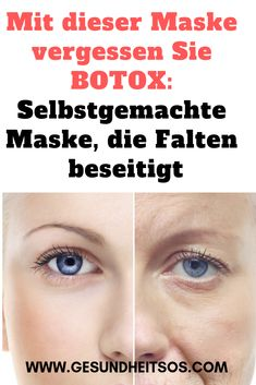 With this mask you forget BOTOX: Homemade mask, .- Mit dieser Maske vergessen Sie BOTOX: Selbstgemachte Maske, die Falten beseitigt… With this mask you forget about BOTOX: Homemade mask that eliminates wrinkles - Face Mask For Pores, Best Face Mask, Pore Mask, Skin Mask, Makeup Tips For Older Women, Diy Hair Mask, Homemade Mask, Wrinkle Remover, Beauty Recipe
