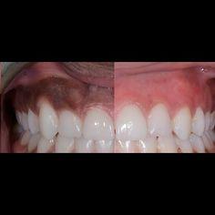 توريد اللثه depigmentation #tooth #toothbrush #teethwhitening #composite#veneers #smile#beauty#jeddah#jeddahbeauty #jeddahartist #jeddah_ksa #jeddahsmile #dentist #beauty#اسنان #اسنانك #اسناني #تجميل_اسنان #جدة#عيادات by dr_nour_almokri Our Dental Veneers Page: http://www.lagunavistadental.com/services/cosmetic-dentistry/veneers/ Other Cosmetic Dentistry services we offer: http://www.lagunavistadental.com/services/cosmetic-dentistry/ Google My Business…