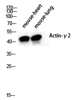 Actin α3 Polyclonal Antibody, Immunogen:Synthesized peptide derived from the N-terminal region of human Actin α3. Synonym: ACTG2; ACTA3; ACTL3; ACTSG; Actin; gamma-enteric smooth muscle; Alpha-actin-3; Gamma-2-actin; Smooth muscle gamma-actin Calculated MW:42 kDa Observed MW:45 kDa Source: Rabbit