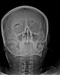 Black eyebrow sign is the description given on plain facial radiographs to intra-orbital air.  Air rises into the most superior aspect of the orbit, almost always in the context of a facial fracture, in a linear fashion, giving the appearance of a eyebrow. The fracture is usually an orbital blowout fracture, where air leaks from either the maxillary or ethmoidal sinus after a fracture.  http://radiopaedia.org/play/721/case/27838/discussion