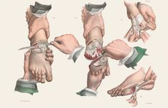 Surgery is never fun, but it was especially brutal during the Victorian era. The nineteenth century saw major advances in the practice of surgery. Illustrations Médicales, Medical Illustrations, Medical Drawings, Medical Photography, Medical History, Medical Art, Image Shows, Victorian Era, Human Body