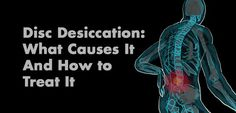 Disc desiccation: what causes it and how to treat it.