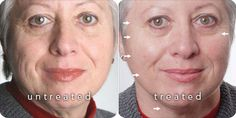 ageLOC® Before & After photos Ageloc Galvanic Spa, Nu Skin Ageloc, Hair Grower, Face Lines, Before After Photo, Lip Plumper, Facial Care, Stretch Marks, Forever Young