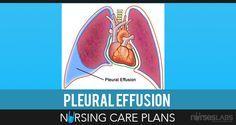Nursing Care Plans — Free Nursing Care Plans — Nurseslabs