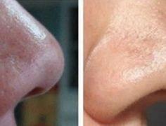 7 usos do bicarbonato de sódio que vão deixar você muito mais bonita! - Ideal Receitas