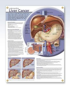 understanding liver cancer anatomy poster for - 28 images - understanding kidney cancer poster kidney cancer, understanding lung cancer anatomy poster defines non small, the 25 best oncology nursing ideas on side, kidney cancer on, leukemia anatomy poster Liver Cancer, Lung Cancer, Breast Cancer, Kidney Cancer, Liver Disease, Lymph Massage, Medical Posters, Oncology Nursing, Medical Science