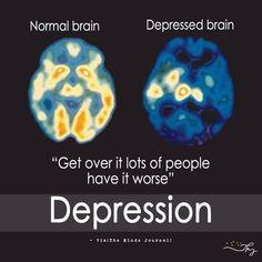 Normal Brain V/s Depressed Brain - http://themindsjournal.com/normal-brain-vs-depressed-brain/