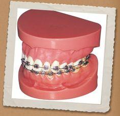 #braces #howitworks #model