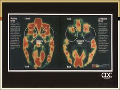 "Normal brain and a traumatized brain. ""Effect of trauma on the brain."""