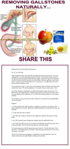 Remove Gallstones Naturally