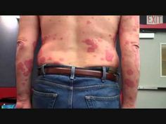 Psoriasis Treatment - Skin & Scalp Psoriasis Cure -  CLICK HERE for The No. 1 Itchy Scalp, Dandruff, Dry Flaky Sore Scalp, Scalp Psoriasis Book! #dandruff #scalp #psoriasis Visit   For psoriasis treatment. Psoriasis is a chronic skin condition. Any approach to the treatment of this disease must be considered for the long term.  - #Dandruff