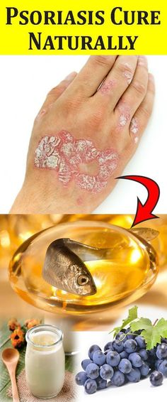 Dermatitis adults plantar in