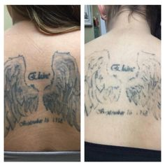 Before/After just ONE session with our Pico Technology Laser! One more session and she is ready for her cover up tattoo! #tattoolightening #coveruptattoos #tattooremoval #absolutetatremoval #picoway #picosure