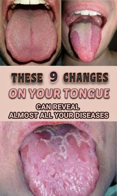 tongue modification, diseases, 9 changes on your tongue,