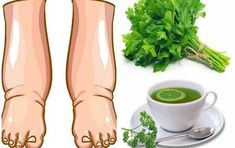 This powerful homemade tea helps with swollen legs in a few days . - This powerful homemade tea helps with swollen legs in a few days! Natural Herbs, Natural Health, Anne Fleck, Parsley Tea, Turmeric Lemonade, Natural Diuretic, Homemade Tea, Water Retention, Detox Your Body