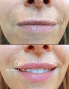 Before + After Nano Color Infusion treatment for lips... #PermanentMakeup