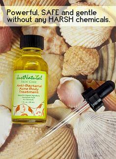 Anti-Bacterial Acne Body Treatment