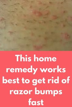 This home remedy works best to get rid of razor bumps fast Prevention is always better than cure. Shaving Bumps, Shaving Razor, Bikini Bump Remedy, Razor Burn Treatment, Razor Burn Remedies, Ingrown Hair Remedies, Skin Bumps, Wellness, Beauty