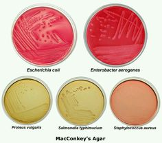Placas de Agar macconkey