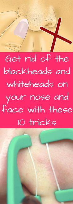 PinterestFacebookTwitterGoogle+Pimples are nasty no matter how you look at them, and the blackheads and whiteheads that collect around your nose can be absolutely infuriating. Figuring out how to get rid of existing whiteheads and blackheads is bad enough, but once... Continue Reading →