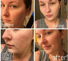 Polishing Peel Nuskin, Beauty Box, Hair Beauty, Galvanic Spa, Abraham Hicks Quotes, After Shave, How To Get Rid, Shaving, Health Tips