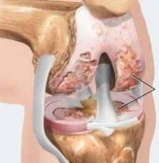 Therapeutic Effects of Intra-articular Botulinum Toxin Type A in Knee Osteoarthritis @http://www.omicsgroup.org/journals/therapeutic-effects-of-intraarticular-botulinum-toxin-type-a-in-kneeosteoarthritis-2167-7921-1000e112.php?aid=75697
