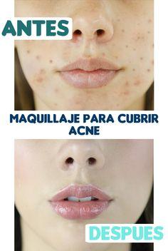 como tapar el acne con maquillaje, como cubrirlo paso a paso para que no se vean lo granitos, te enseño como usar el maquillaje para que se vea la piel perfecta