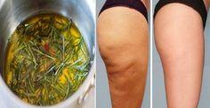 Você sofre com celulites? Provavelmente, sim! A maioria das mulheres lida com esse incomodo nas pernas, nos glúteos e não sabe o que fazer de eficiente para se livrar destas marcas. Mas, se fosse possível vencer essa batalha com receitas caseiras...