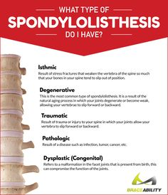 What type of spondylolisthesis do I have? There are five different types of spondylolisthesis: isthmic, degenerative, traumatic, pathologic, & dysplastic. Read more to understand the symptoms of this common condition & the underlying causes behind it. | BraceAbility