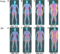 Higher body fat percentage indicates poor physical condition while lower body fat percentage indicates good physical condition. But how to properly asses or measure body fat percentage? Body Fat Measurement, Lower Body Fat, Skeletal Muscle, Baby Got Back, Body Composition, Young Female, Healthy Women, Anatomy, Artistic Anatomy