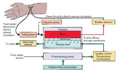 Schematic diagram of hemodialysis. As the patient's blood passes through the dialyzer, toxins diffuse into the dialysis fluid. | HESI Case Studies