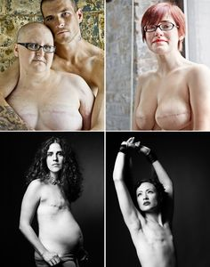 The SCAR Project is a series of large-scale portraits of young breast cancer survivors shot by fashion photographer David Jay. Primarily an awareness raising campaign, The SCAR Project puts a raw, unflinching face on early onset breast cancer while paying tribute to the courage and spirit of so many brave young women. http://www.facebook.com/pages/The-SCAR-Project/255064983743