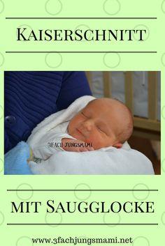 Komplikationen beim Kaiserschnitt: Saugglocke kam zum Einsatz bei Kaiserschnitt - ein Geburtsbericht