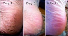 Never Suffer From Cracked Heels, Corns and Calluses Again with This Home Remedy