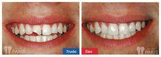 Trám răng cửa cần đảm bảo tính thẩm mỹ cao và đô bám lớn trên mô răng thật