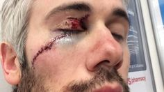 Red Wing's forward Drew Miller -  a little reminder that hockey is played with super-sharp blades on everyone's feet!
