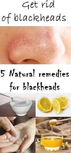 Today we offer five methods using natural ingredients that have the power to effectively remove blackheads. These remedies for blackheads are great.