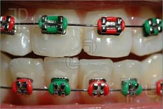 Photograph Of Colorful Braces. High Resolution Photograph at ...