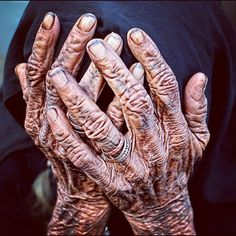 Old hands. Extremely wrinkled. Discoloration of skin in darker shades like they…