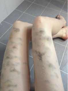 Already bruised butt taking cane strokes 7