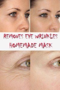 Homemade mask which removes eye wrinkles - Diva Secrets How To Get Rid Of Acne, How To Remove, Under Eye Wrinkles, Natural Face Cream, Homemade Mask, Homemade Blush, Wrinkle Remover, Anti Aging Cream, Skin Treatments