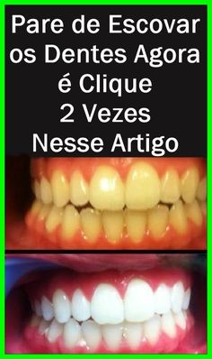 Receita Caseira Para Remover a Placa Bacteriana e o Tártaro dos Dentes! Get Whiter Teeth, Oral Surgery, Best Oral, Teeth Care, White Teeth, Keto Diet Plan, Diet Plans, Oral Health, Natural Teeth Whitening